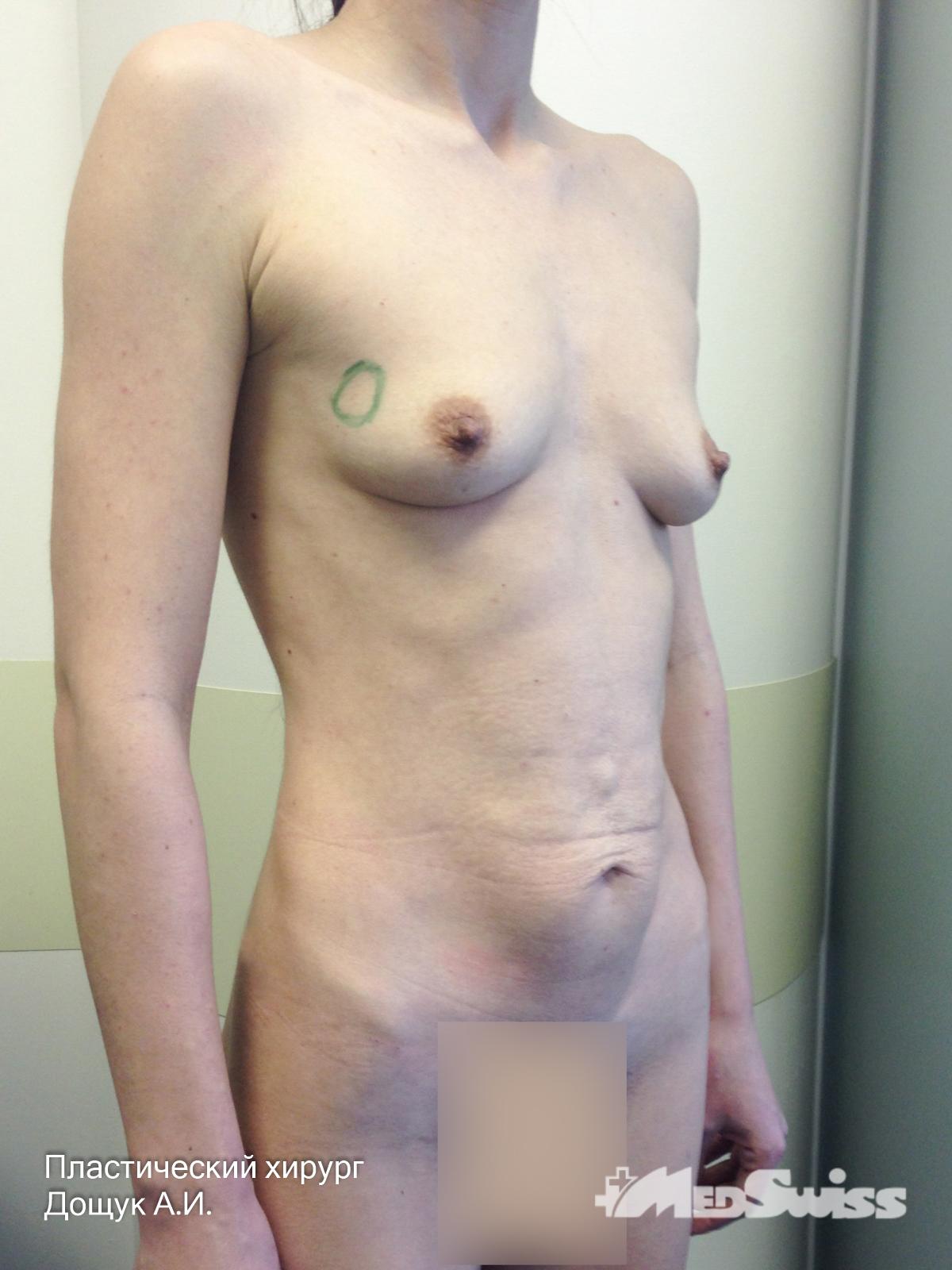 внешпромбанка сидни оана пластический хирург фото работ вуду различны
