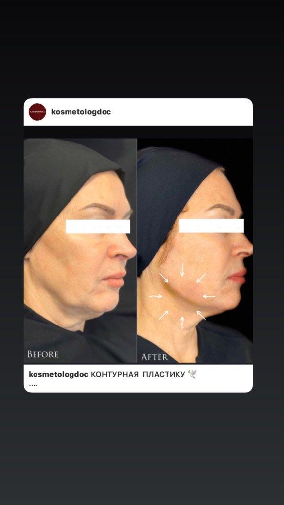 Авторская методика коррекции овала лица в сочетании хирургических нитей и контурной пластики2
