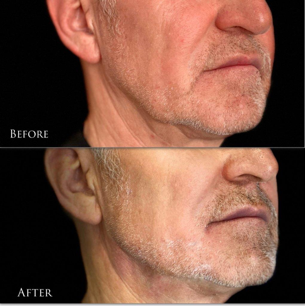 Авторская методика коррекции овала лица в сочетании хирургических нитей и контурной пластики3