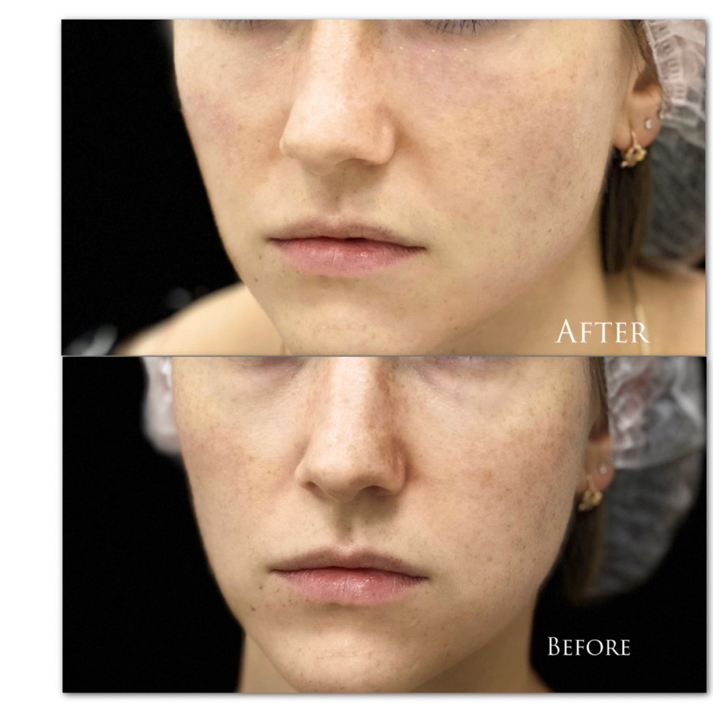 Коррекция носослёзной борозды препаратом Volbella 1ml